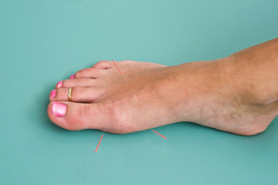 polyneuropathy disorders
